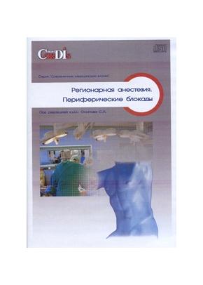 Регионарная анестезия. Периферические блокады CD