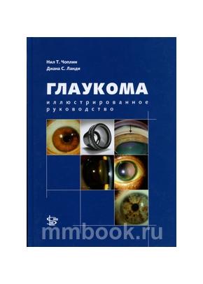 Глаукома. Иллюстрированное руководство