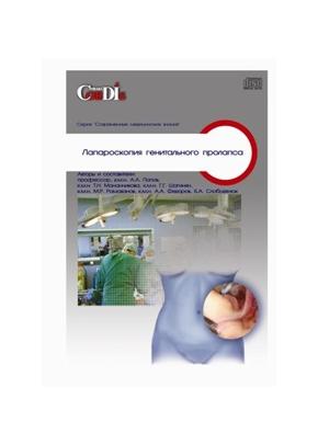 Лапароскопия генитального пролапса СD