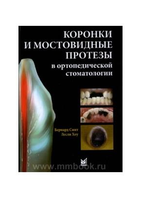 Коронки и мостовидные протезы в ортопедической стоматологии
