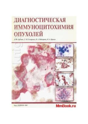 Диагностическая иммуноцитохимия опухолей
