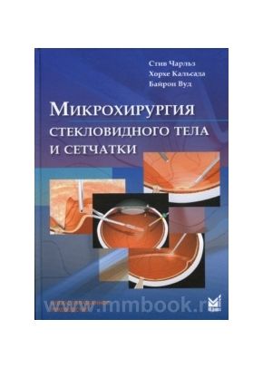 Микрохирургия стекловидного тела и сетчатки