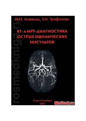 КТ и МРТ-диагностика острых ишемических инсультов