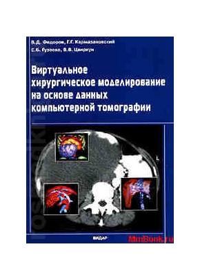 Виртуальное хирургическое моделирование на основе данных компьютерной томографии