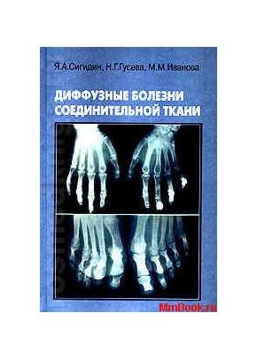 Диффузные болезни соединительной ткани