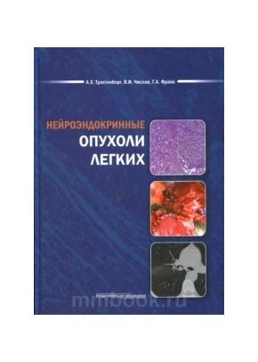 Нейроэндокринные опухоли легких