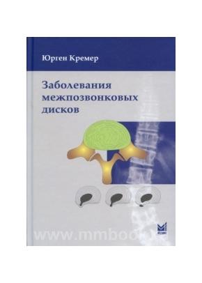 Заболевания межпозвонковых дисков