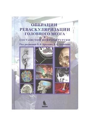 Операции реваскуляризации головного мозга в сосудистой нейрохирургии