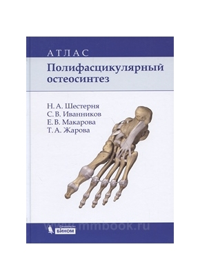 Полифасцикулярный остеосинтез: атлас