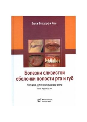 Болезни слизистой оболочки полости рта и губ