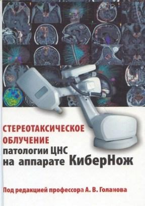 Стереотаксическое облучение патологии ЦНС на аппарате КиберНож