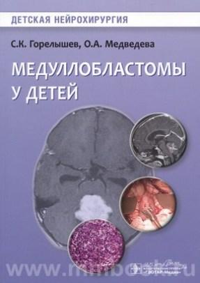 Медуллобластомы у детей