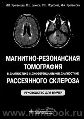 Магнитно-резонансная томография в диагностике и дифференциальной диагностике рассеянного склероза : руководство для врачей